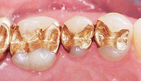 Амальгамні пломби з золотом