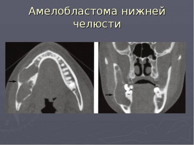 амелобластома нижньої щелепи