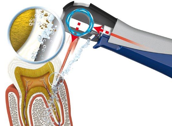 Апарат Вектор для лікування пародонтиту, ясен, чищення зубів в стоматології. Що це таке