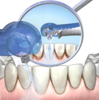 апарат вектор відгуки стоматологів