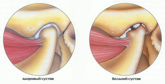 Артрит щелепно-лицьового суглоба, симптоми і лікування при ...