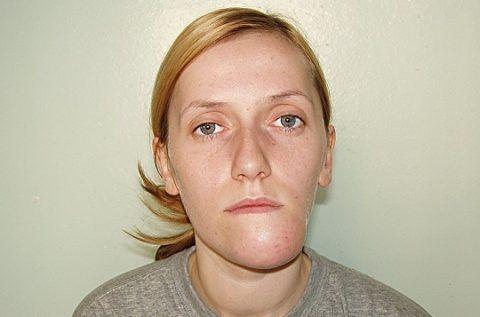 Асиметрія пацієнта з Амелобластома нижньої щелепи