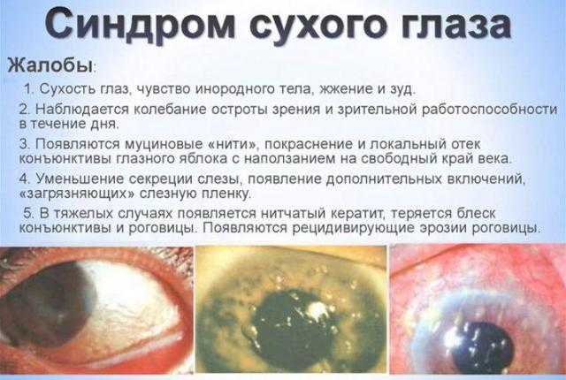 Очні краплі Левофлоксацин: інструкція із застосування для очей, аналоги