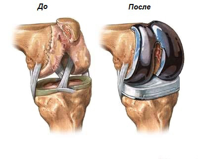 Реабілітація після ендопротезування колінного суглоба: розбір по тижнях