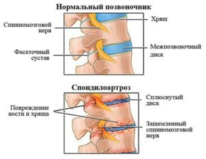 Спондилоартроз грудного відділу хребта: що це таке, симптоми і лікування
