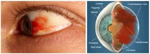 Гемофтальм очі: причини і лікування часткової патології