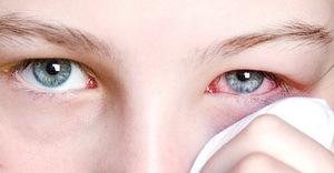 Вірусне захворювання очей у людини: поширені хвороби, симптоми