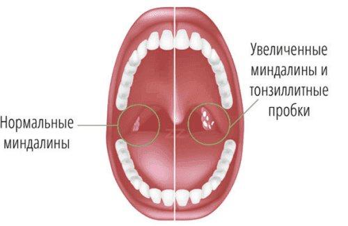 бактеріальний тонзиліт