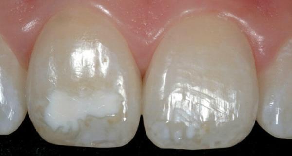 Білі плями на зубах як позбутися
