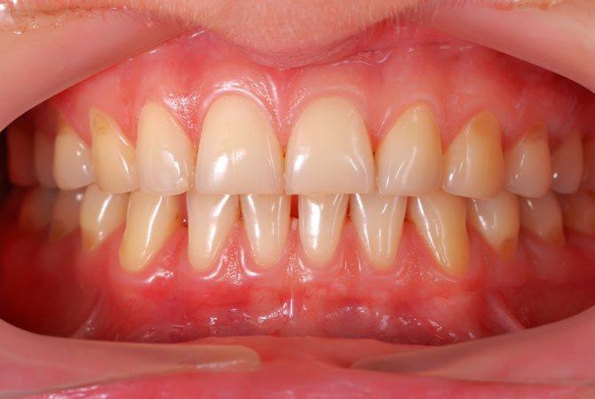 білі плями на зубах у ясен
