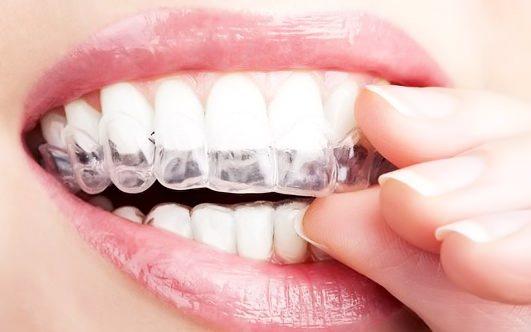 білі зуби
