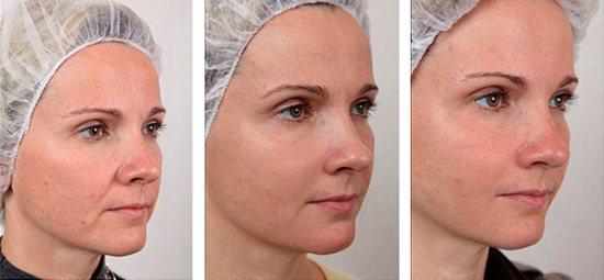 Біореволюметрія: фото до і після