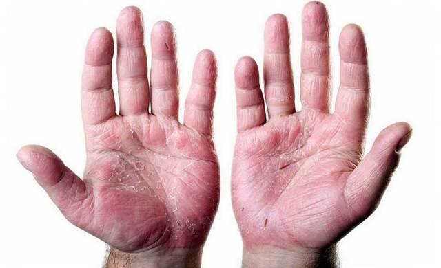Бляшки на руках