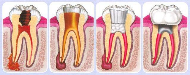 хвороба зуба