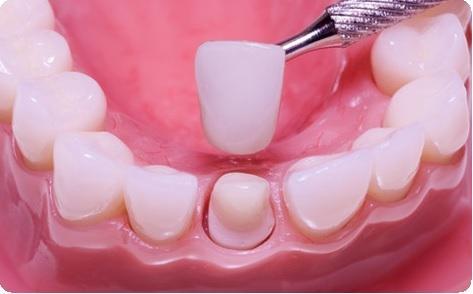Болить ясна, ниє зуб під коронкою при натисканні - Якщо болить зуб - Блог