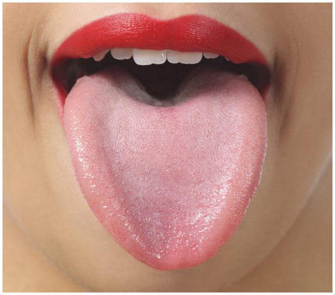 болить корінь язика причини