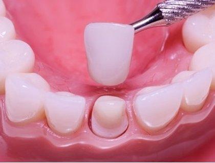 Болить зуб під коронкою: як зняти біль в домашніх умовах?