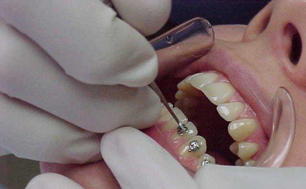 Чи боляче ставити брекети на зуби відгуки