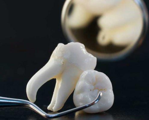 боляче видаляти коріння зруйнованого зуба