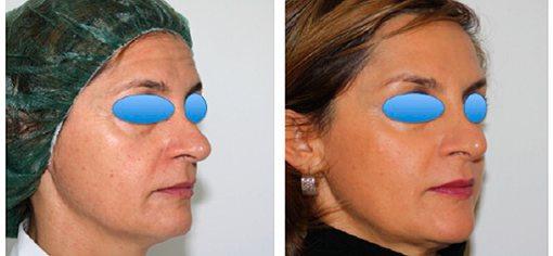 Ботулінотерапія області чола, міжбрів'я і в куточках очей.