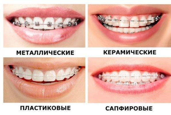 брекет-системи для зубів