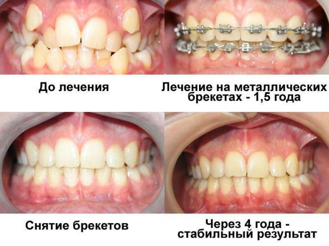 Брекети до і після