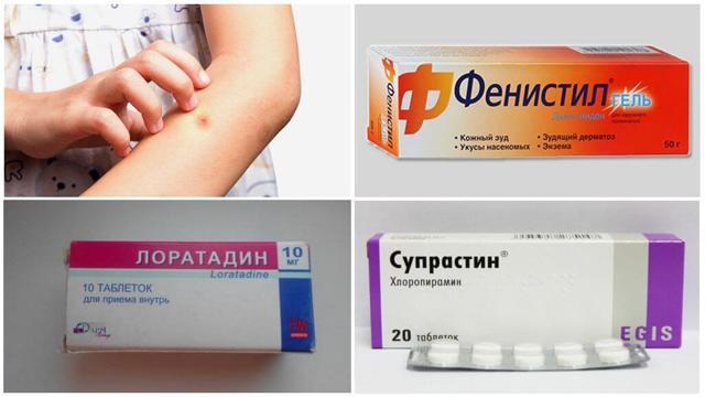 Алергія на укуси комарів (куліцідоз): лікування у дорослих і дітей