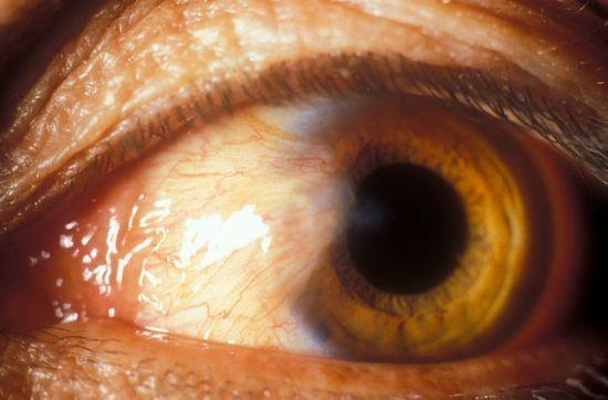 Желтушность склер: причини жовтих очей, як очистити від жовтизни у новонароджених
