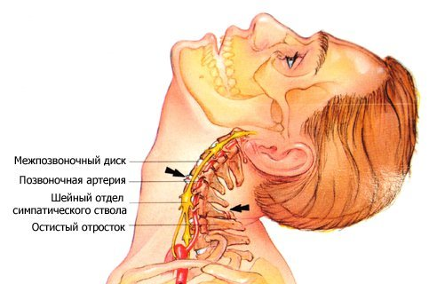 Остеохондроз 3 ступеня: шийного, грудного, поперекового відділу, симптоми і лікування