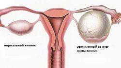 Збільшення яєчників перед місячними у жінок: норма чи відхилення
