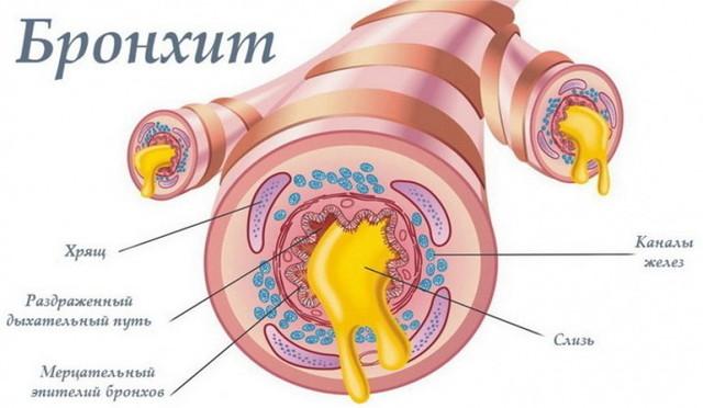 Кашель у грудничка - причини виникнення і лікування
