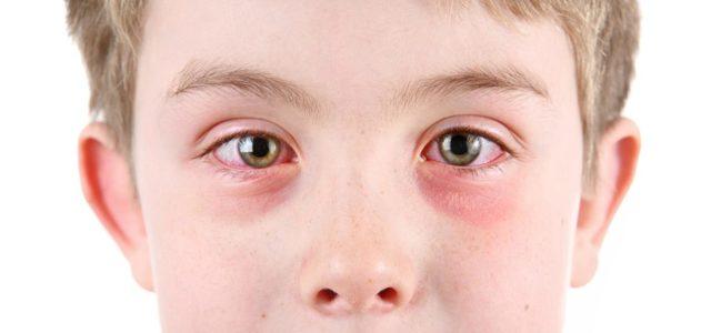 Очні краплі Офтан Дексаметазон: інструкція із застосування, для чого призначають, відгуки
