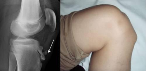 Хвороби колінного суглоба: які бувають, види, симптоми і лікування