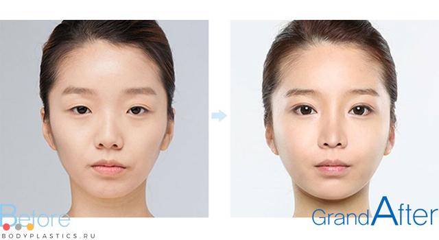 Операція зі збільшення очей: результати до і після пластика, показання, підготовка