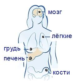Рак нирки 4 ступеня: скільки живуть з метастазами, яке треба далі продовжувати лікування і харчування, а також симптоми IV стадії і прогноз перед смертю