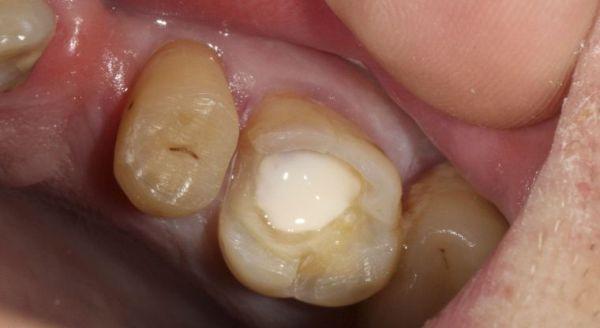 Цементна пломба на зуб