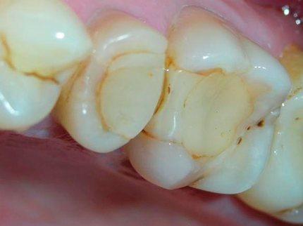 Цементні пломби в зубах