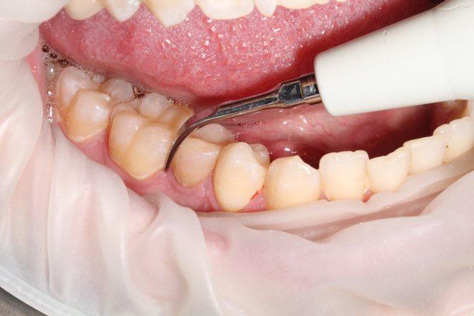 Ціна на ультразвукову чистку зубів | Стоматологія АльтоДент в ...