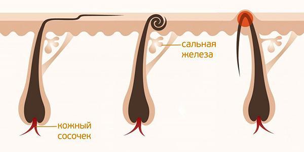 чому небезпека вростання волосся після шугаринга