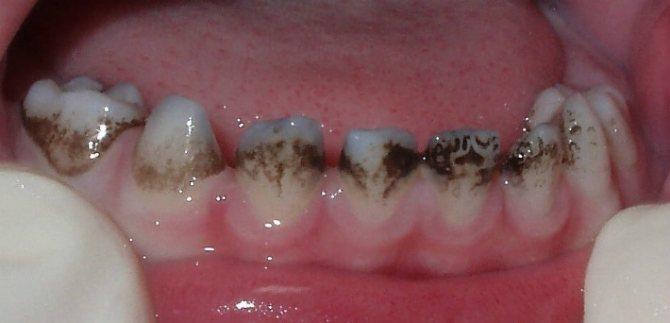 Чорні зуби і хронічні захворювання