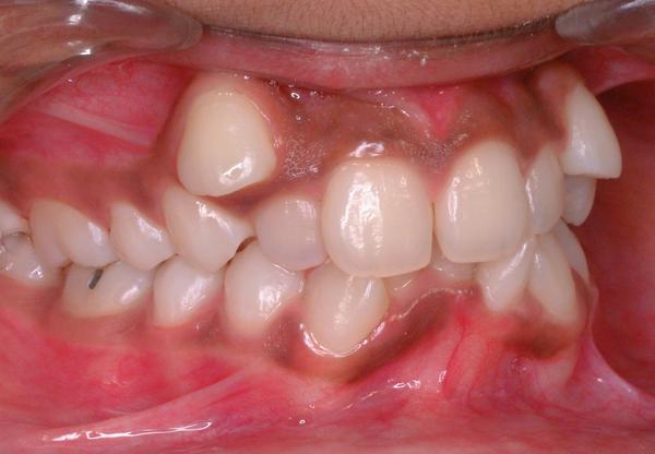 четверта причина кривих зубів - недостатня увага скоріше з боку батьків в період зміни зубів