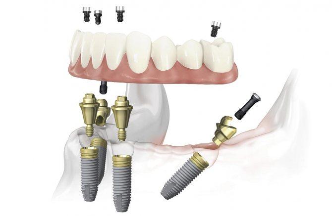 Чотирьох імплантів може бути досить для підтримки протеза на всю щелепу. Фото: Smile-at-Once