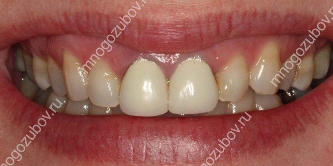 Що робити якщо темніють зубні коронки
