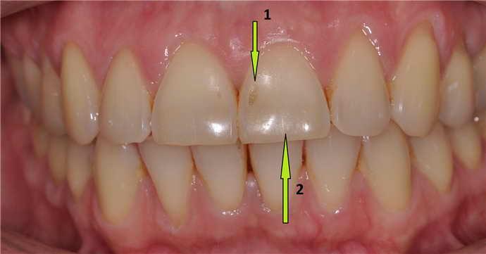 що таке ерозія зубної емалі