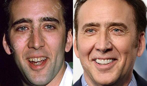 Що таке голлівудська посмішка?