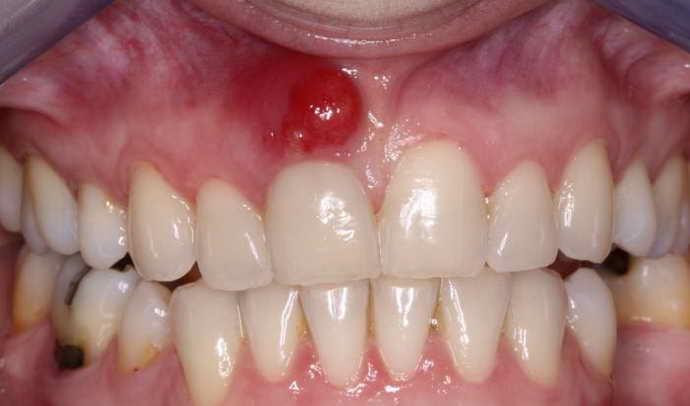 Що таке зубний свищ і як він виглядає