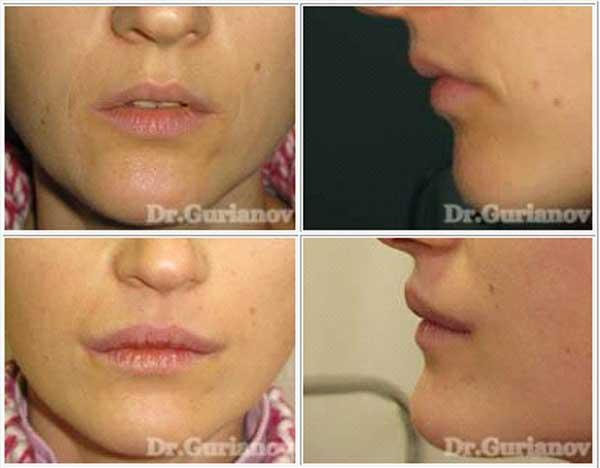 Cornerlift - підняття куточків губ. До і через 2 місяці після операції.