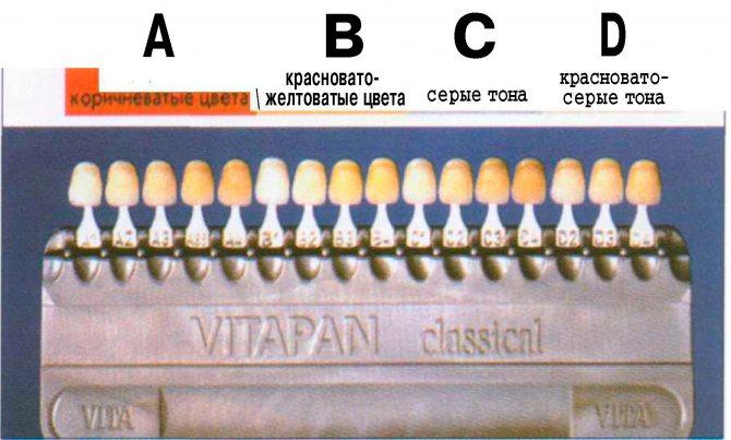 Колірна гамма зубної емалі