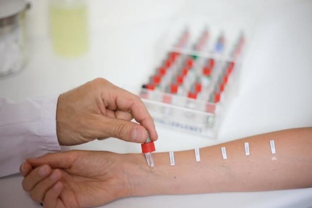 Аналіз крові на алергени: ціна для дітей і дорослих