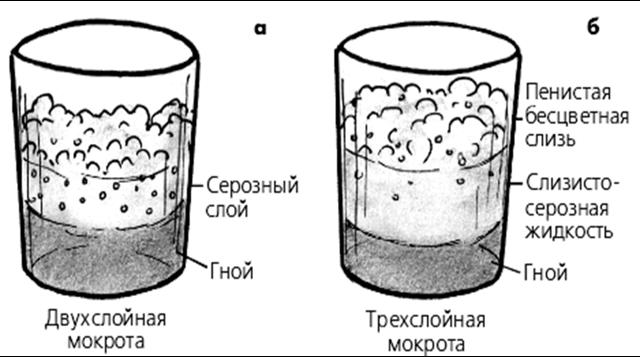 Дослідження мокротиння: показання, підготовка і методи аналізу